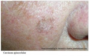 cancer de piele 2