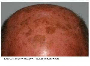 cancer piele 1