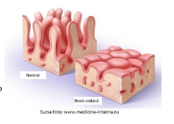 dureri articulare cu boala celiacă