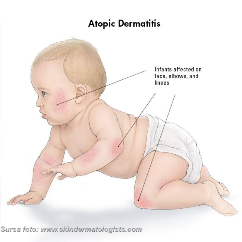 Dermatita atopică,